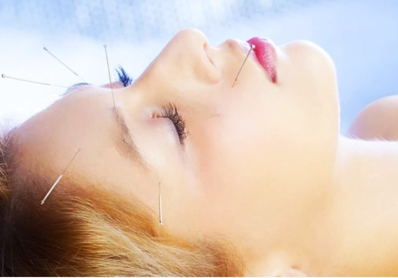 cosmetic Acupuncture face lift new delhi