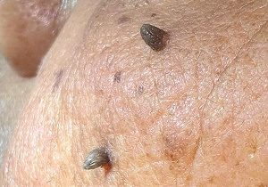 mole, wart, skin tag, corn