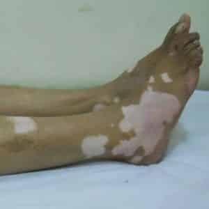 027 vitiligo-leg-olq71w9hob1y06pkgkj320g1k93ylfrksvyqk_55ff1dd71a220942b4b744b2ec9b2002